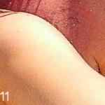 Skin (11) - uso-privato